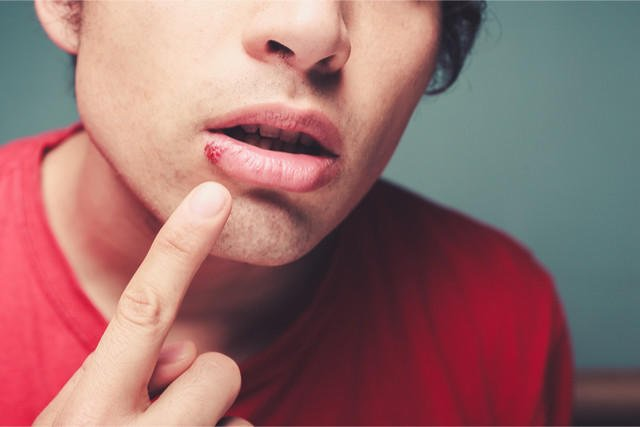 Are canker sores contagious