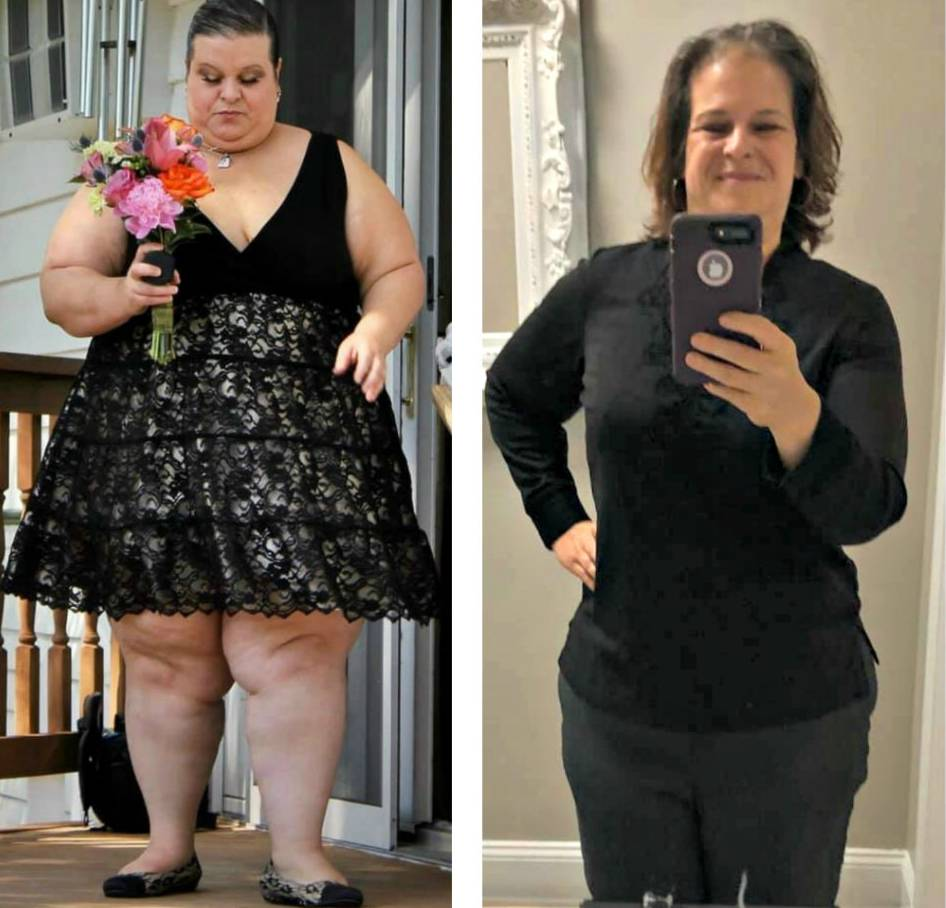 Weight Loss Surgery Before And After